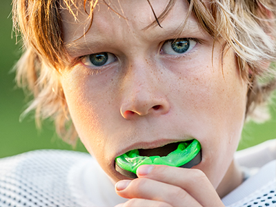 Sports Mouthguards